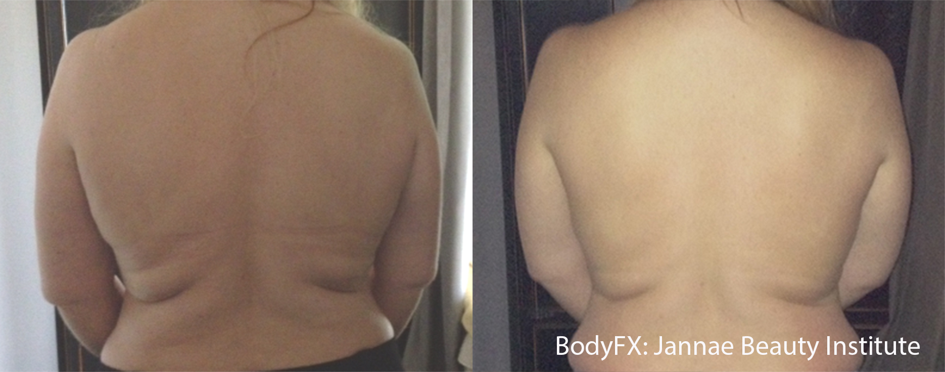 BodyFX_Before&After_006