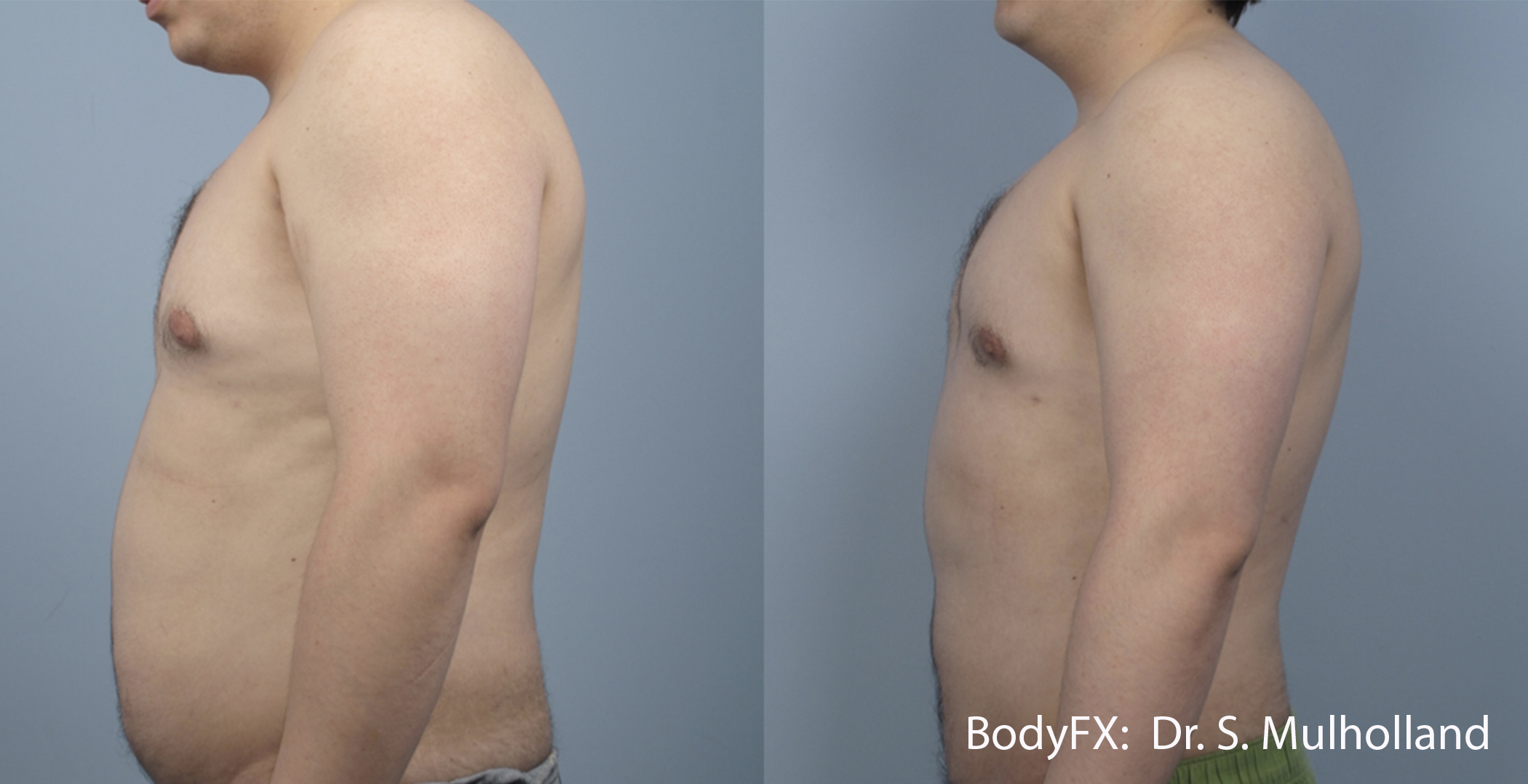 BodyFX_Before&After_012