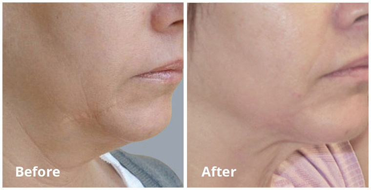 Forma/PlusBefore & After 12