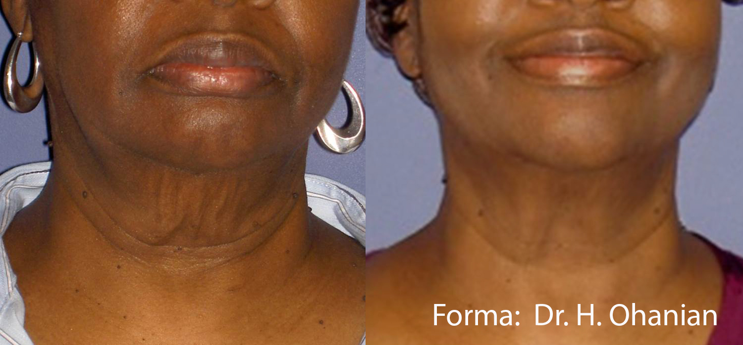 Forma/PlusBefore & After 11