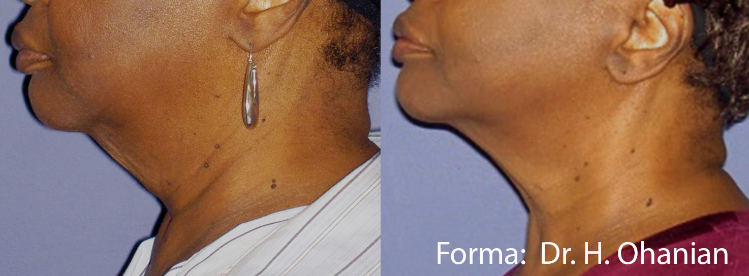 Forma/PlusBefore & After 10