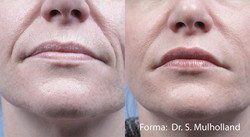 Forma/PlusBefore & After 02