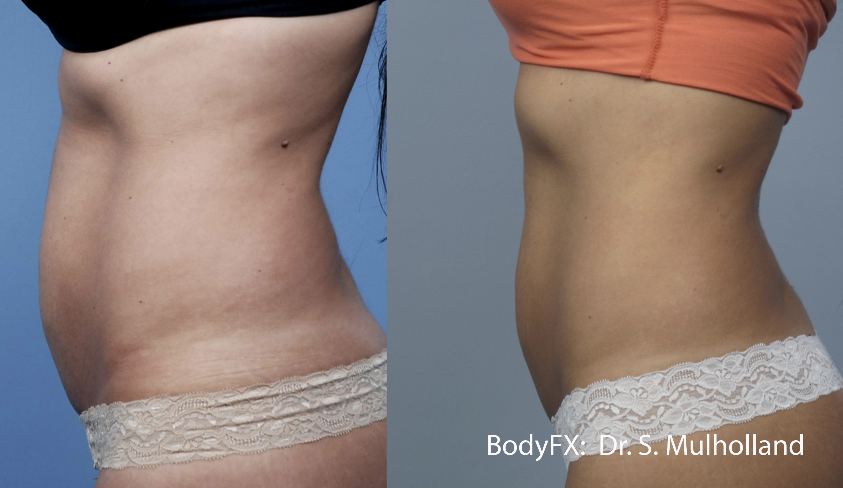 BodyFX_Before&After_011