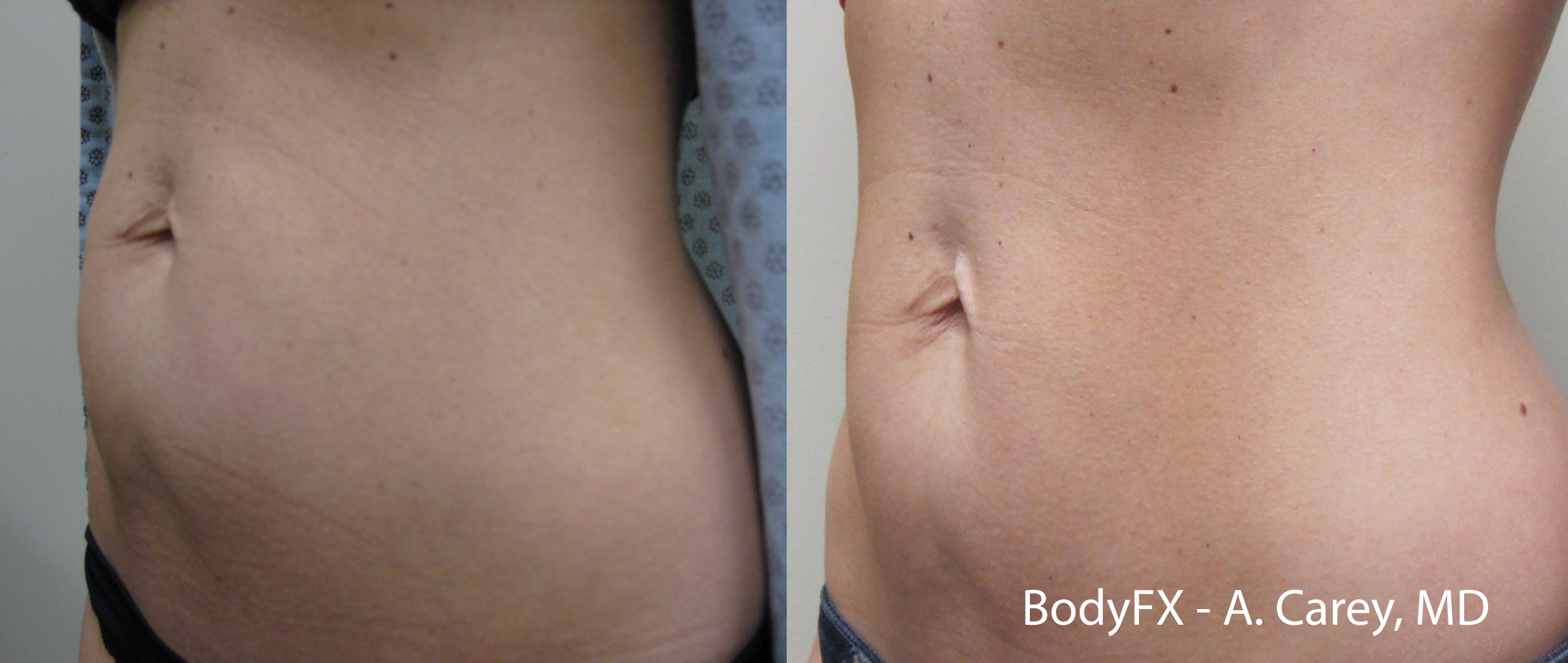 BodyFX_Before&After_001
