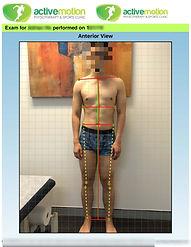 PostureScreen-ADV-Ho-Adrian-2019-01-15_P