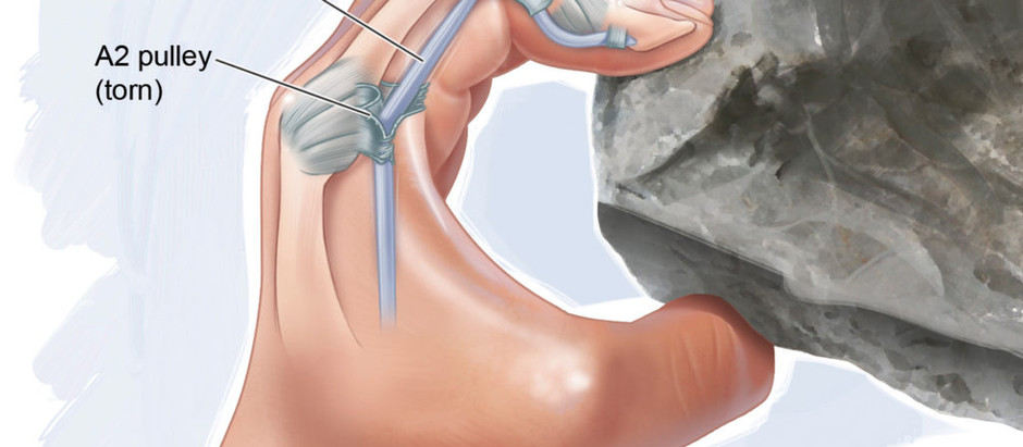 Finger Pulley Injuries in Rock Climbers