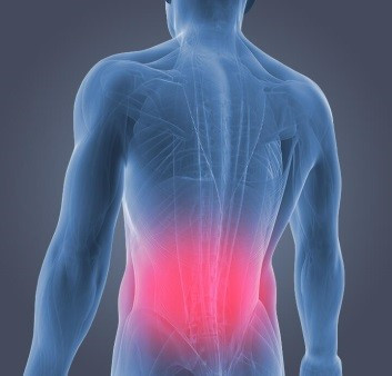 Low Back Pain Physical Therapy