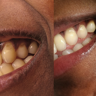 Teeth comparison2.jpg