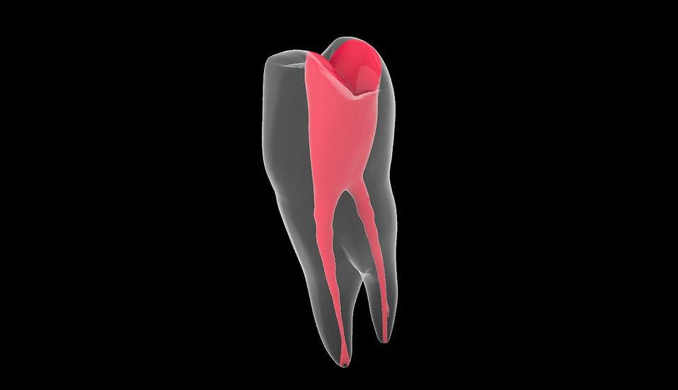 Upper First Premolar Easy - 30pcs