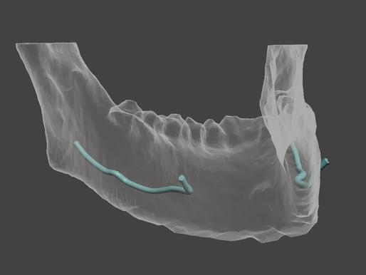 Il medico che si interessa al 3D non può non conoscere questo software...