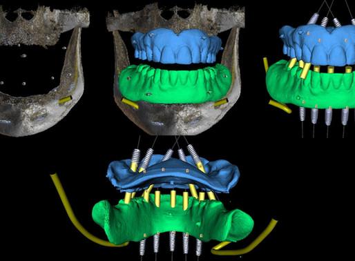 Come superare i problemi del passaggio al digitale 3D per un Odontoiatra. Risposte ai dubbi più freq