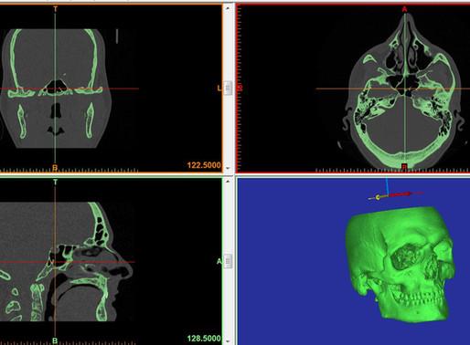 Workshop gratuito di Modellazione e Stampa 3D in Medicina