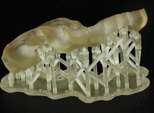 Stampa 3D Dentale: come impostare quei maledetti supporti?