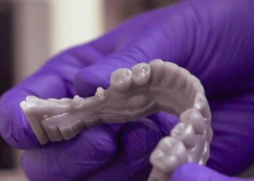 La risoluzione di una stampante 3D: che cos'è, come si verifica? Tasto dolente?