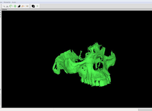 Ecco il software gratuito per ricostruire in 3D una Cone Beam CT