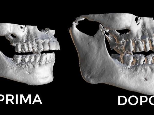 Ricostruzioni 3D ossee. Come ridurre gli artefatti di superficie con BlueSkyPlan