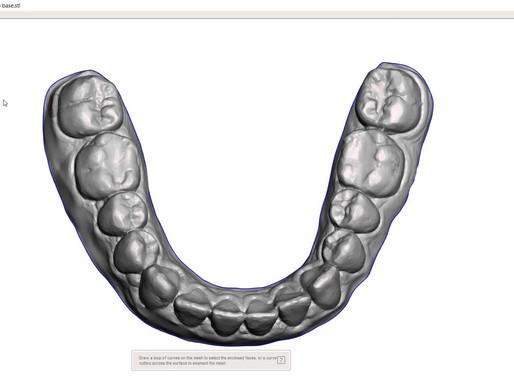 Chiudere modelli 3D dentali con MeshMixer free!