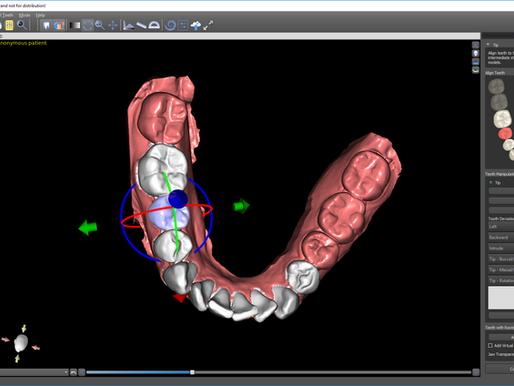 Ortodonzia 3D con software gratuito: il modulo ORTHO di BlueSkyPlan.