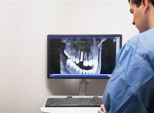 Sabato 17 Marzo - Diretta di 1 ora ad accesso libero su Software 3D free per il settore dentale