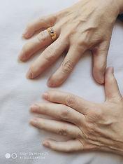 artrosis manos 1.jpg