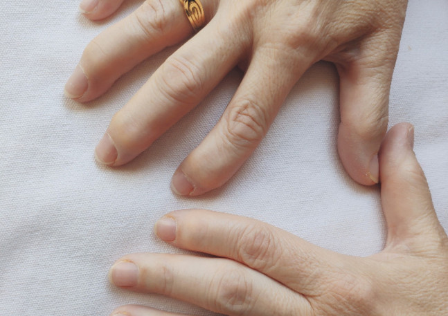 artrosis manos
