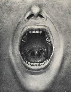 cotton-teeth-pulling.jpg
