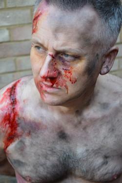Torture victim