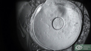 Infrared Biomicroscopy of Posterior Capsule Opacification