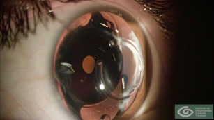 XtraFocus Pinhole for Keratoconus with Intracorneal Ring Segments