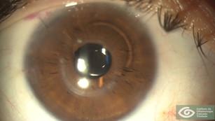 Toric IOL with XtraFocus Pinhole Implant