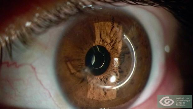 XtraFocus for Keratoconus with Intracorneal Ring Segments