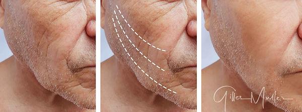 Affaissement homme | Avant et après | Æsthetic LIFT médical PRO