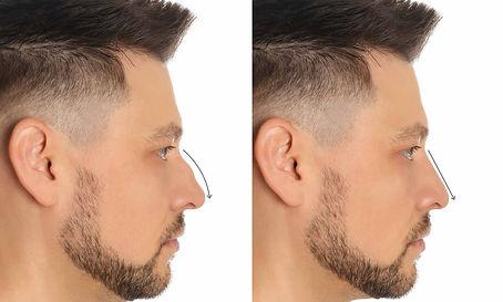 Rhinoplastie médicale | Avant et après | Æsthetic LIFT médical PRO