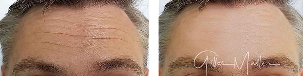 Botox homme | Avant et après | Æsthetic LIFT médical PRO