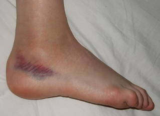 Ankle Sprains- the Most Under-Rehabilitated Sports Injury