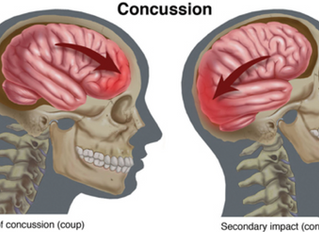 I have a Concussion, can physical therapy help?