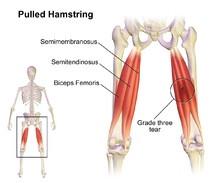 Hamstring Pulls