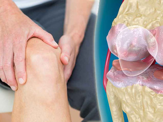Can physical therapy help with hip and knee osteoarthritis?
