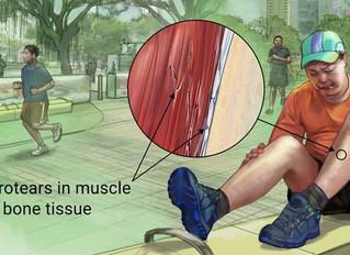 Disarming Shin Splints: Allowing Runners to Run