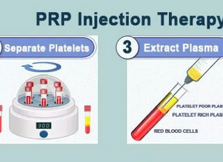 PRP and Stem cell therapy for orthopedic conditions