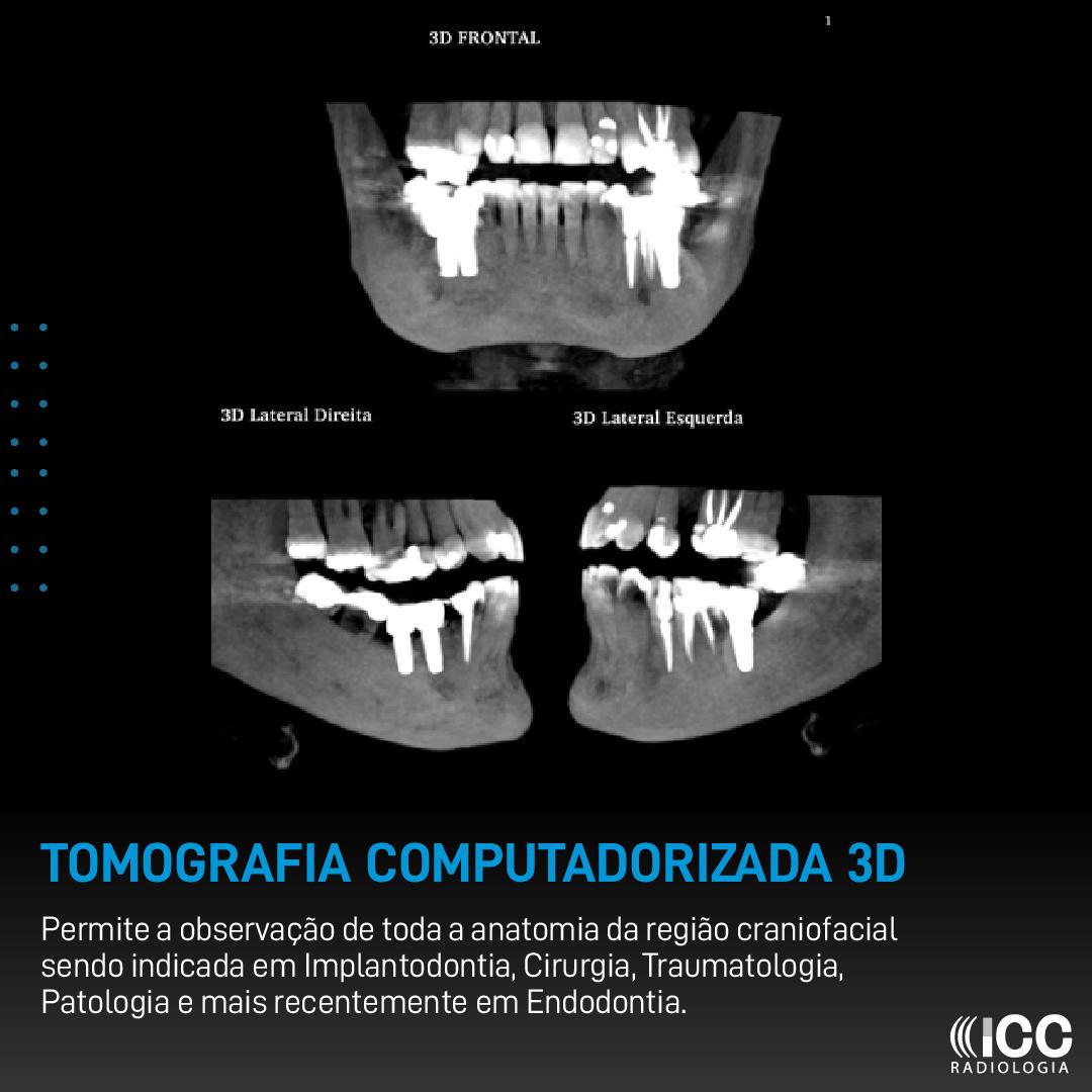 Tomografia Computadorizada 3D