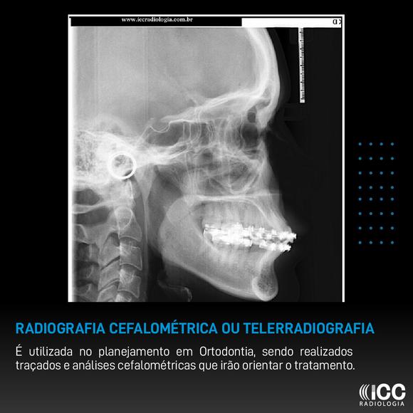 Radiografia Cefalométrica ou Telerradiografia