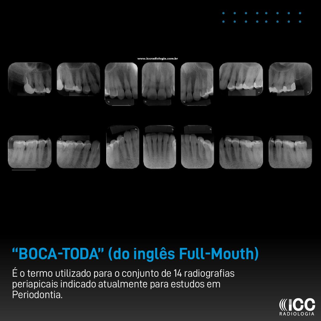 """Boca-Toda"" (do inglês Full-Mouth)"