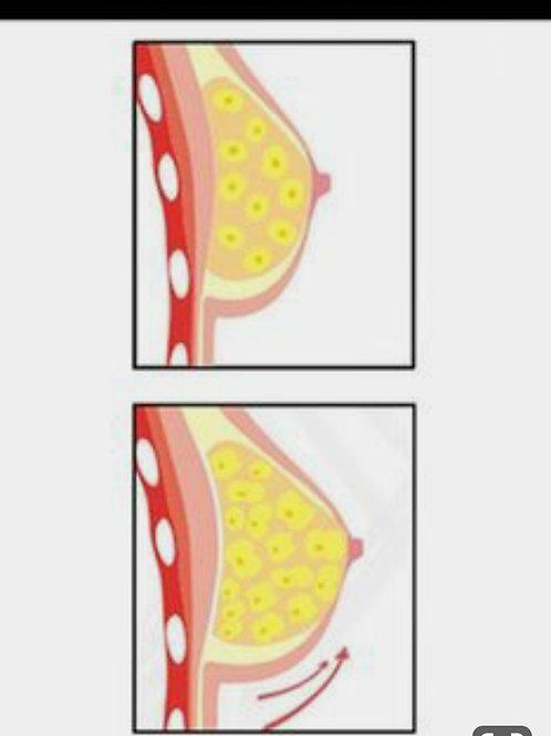 Tighten & Firm Breast