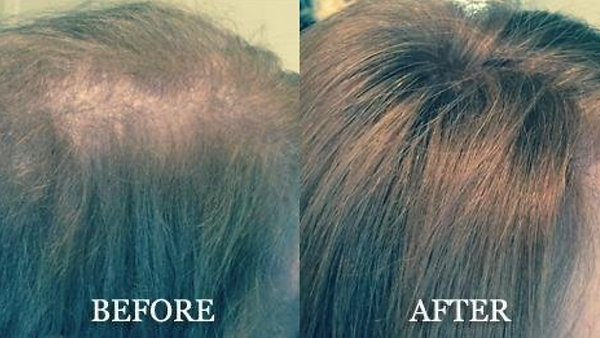 hair replacement norfolk ma  .png
