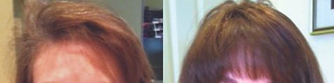 hair_replacement_before_after_26.jpg