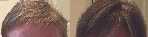 hair_replacement_before_after_2.jpg