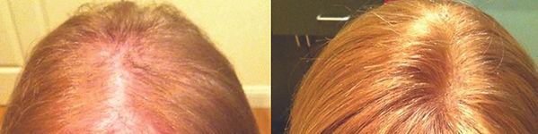 west_boylston_hair_replacement_for_women
