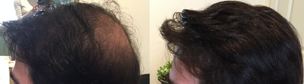 hair replacement system brookline.png