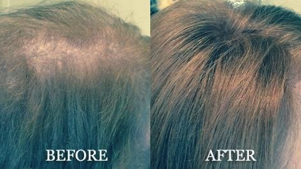 hair replacement essex ma  .png
